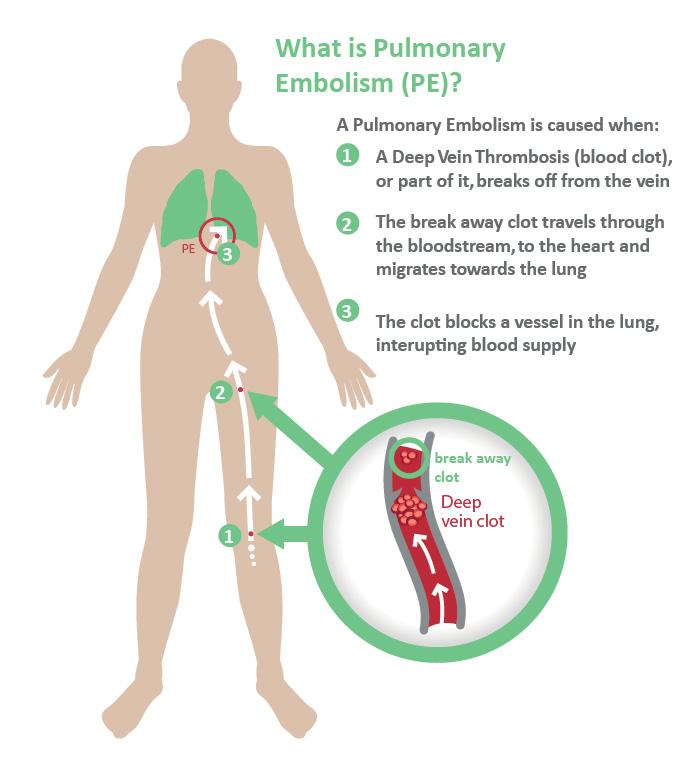deep vein thrombosis | istahealthcare, Human body